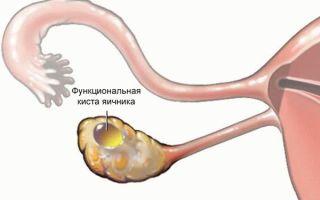 Может ли быть задержка месячных при кисте яичника