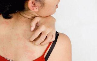 Сухая кожа при климаксе: как устранить и предупредить зуд