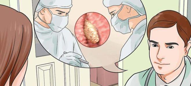 Операция по удалению полипа матки и восстановительный период