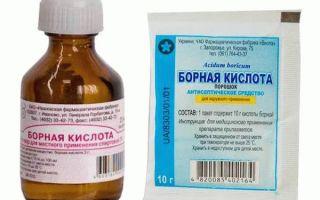 Борная кислота: правила использования при молочнице