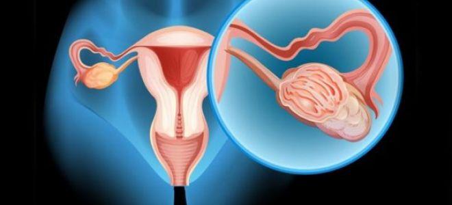 Симптомы и лечение параовариальной кисты яичника