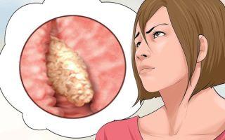 Все о железисто-фиброзным полипе эндометрия