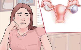 Лечение и причины появления многокамерной кисты яичника