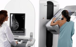 В какой день цикла можно проводить маммографию