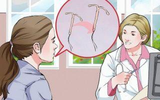 Какими должны быть выделения после установки спирали