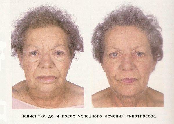 Гипотиреоз у женщин симптомы и признаки лечение у молодых и в менопаузе
