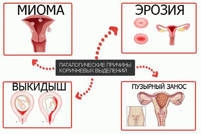 Причины кровотечений при беременности