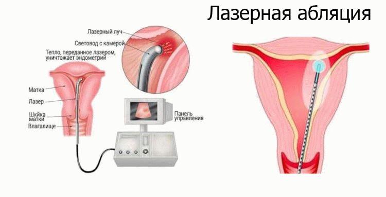 лазерная абляция эндометрия