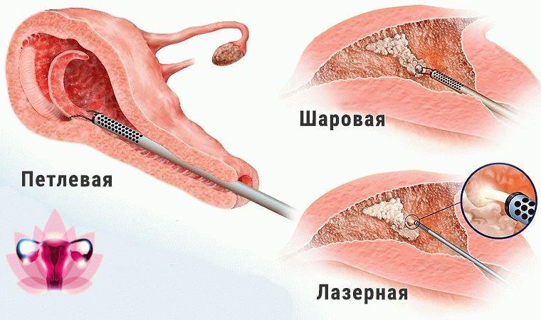 виды абляции эндометрия
