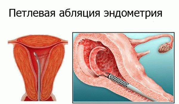 петлевая абляция эндометрия