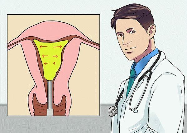 микроволновая абляция эндометрия
