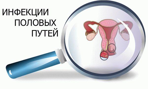 инфекции половых путей
