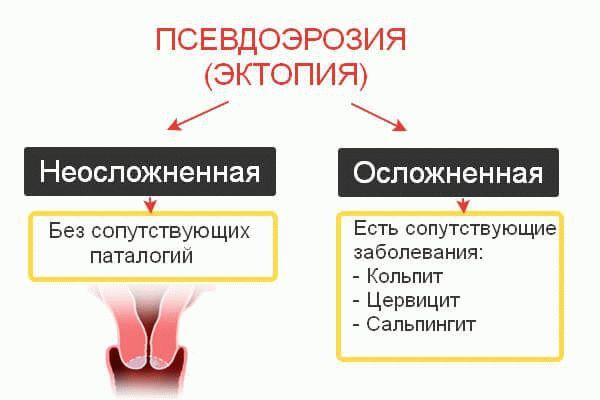 Формы эктопии
