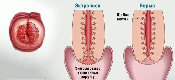 Шейка матки в норме и эктропион