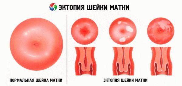 Норма и эктопия