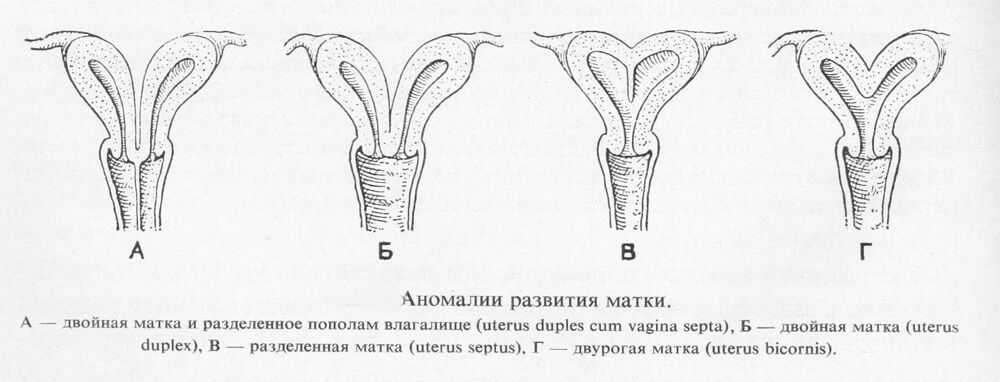 аномалии развития матки