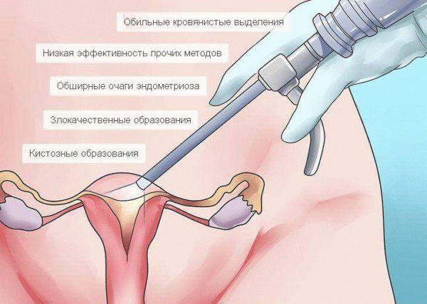 Показания для лапороскопии