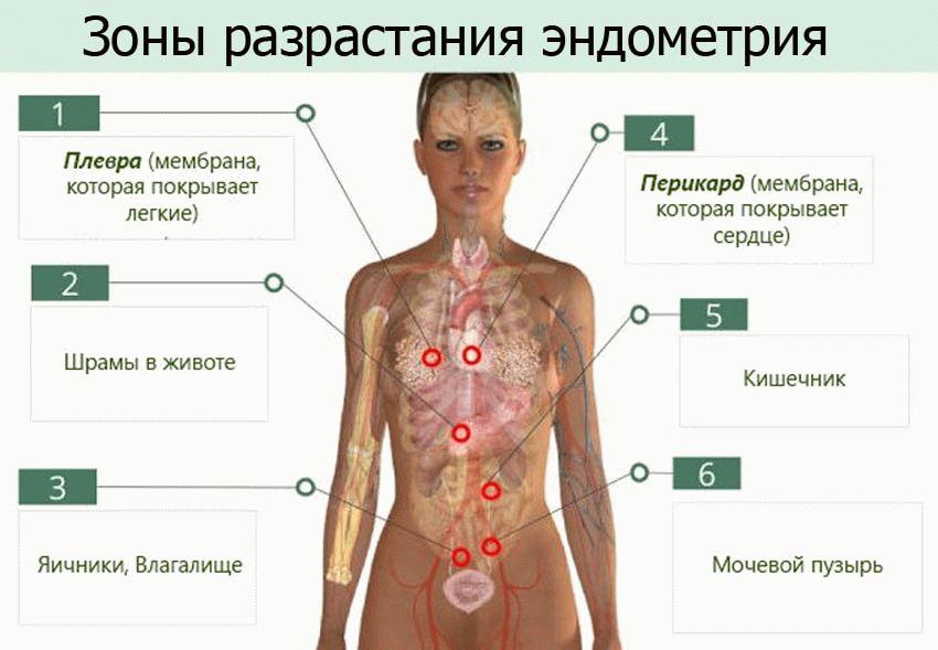 зоны разрастания эдометрия