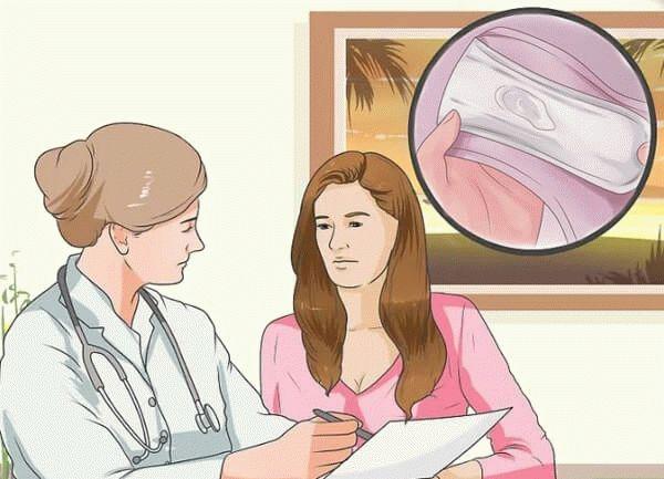 врач рассказывает про выделения