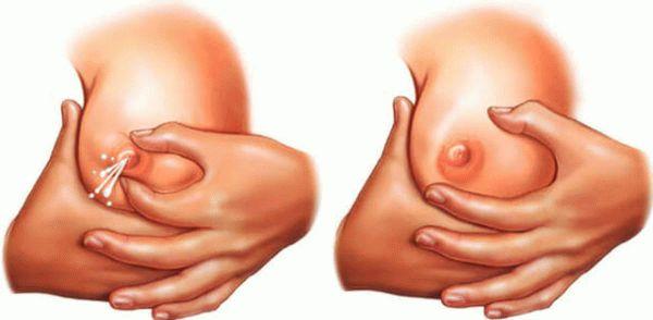 Выделение молозива из груди