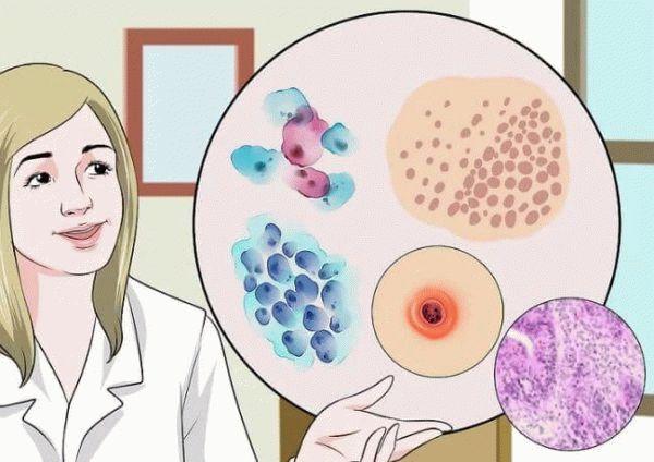 врач рассказывает о венерических заболеваниях