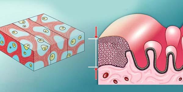 Атрофия эндометрия матки
