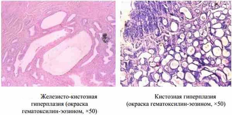 железисто-кистозная гиперплазия эндометрия
