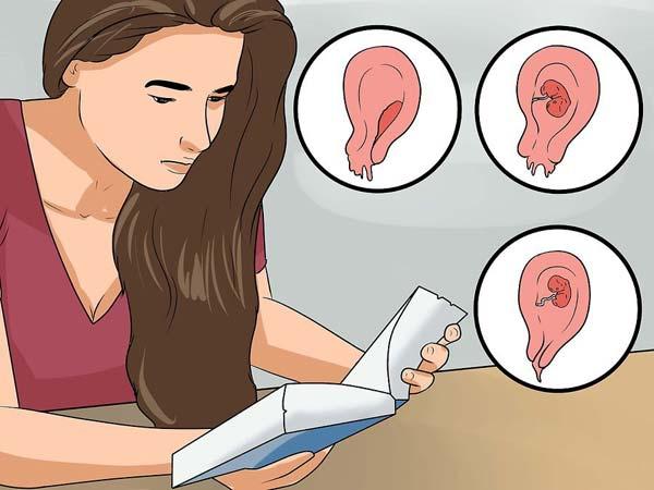 самопроизвольный аборт