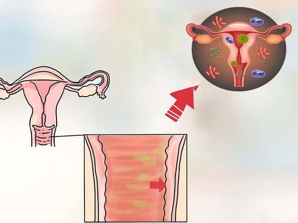 инфекции в матке