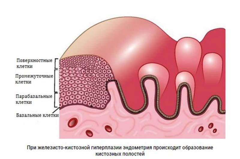 железисто-кистозная гиперплазия