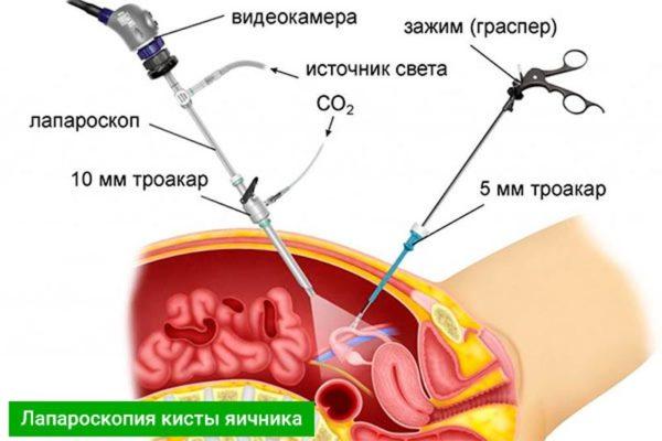 лапороскопия кисты яичника