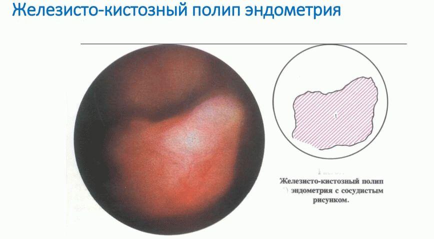 железисто-кистозный полип