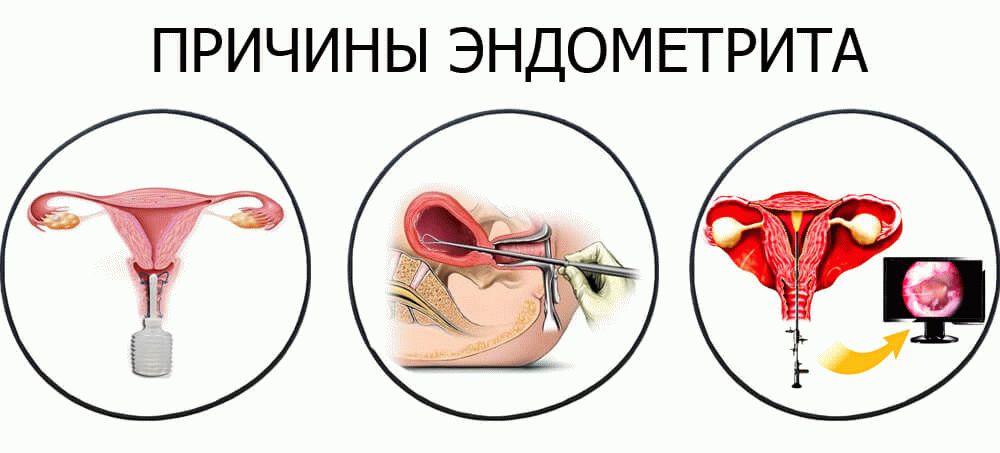Хронический эндометрит лечение перед эко