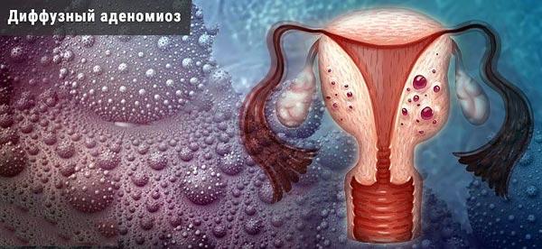 диффузный аденомиоз