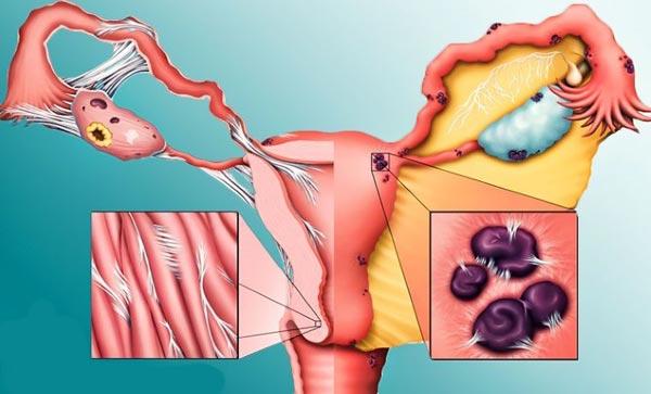 эндометриоз и эндометрит