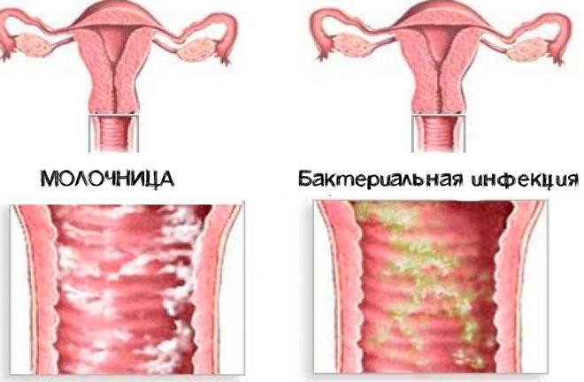 молочница и бактериальная инфекция